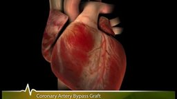 A Patient's Guide To Cardiac Surgery (Coronary Artery Bypass Surgery)